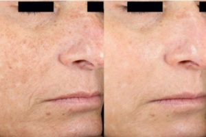 New Option For Face Skin Rejuvenation