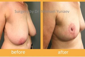 Turn To A Specialist For A Breast Lift Procedure