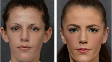 Minor Procedures On The Face That Have Big Results
