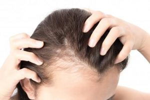 What is Female Pattern Loss of Hair?