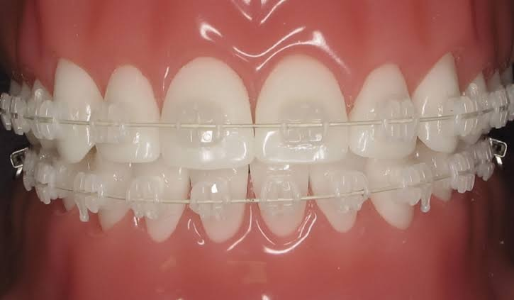 Are You Put-Off by The Thought of Using Metallic Braces? – Invisalign Comes to The Rescue