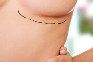 Choosing Your Options for the Best Breast Implants