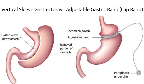 Difference between Gastric Bypass and Lap-Band Surgery: