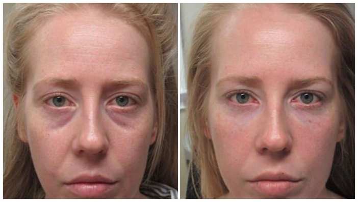 Enhance Your Appearance With Tear Trough Filler