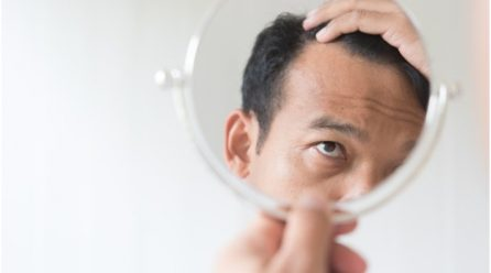 How Many Hair Transplants Can You Have?