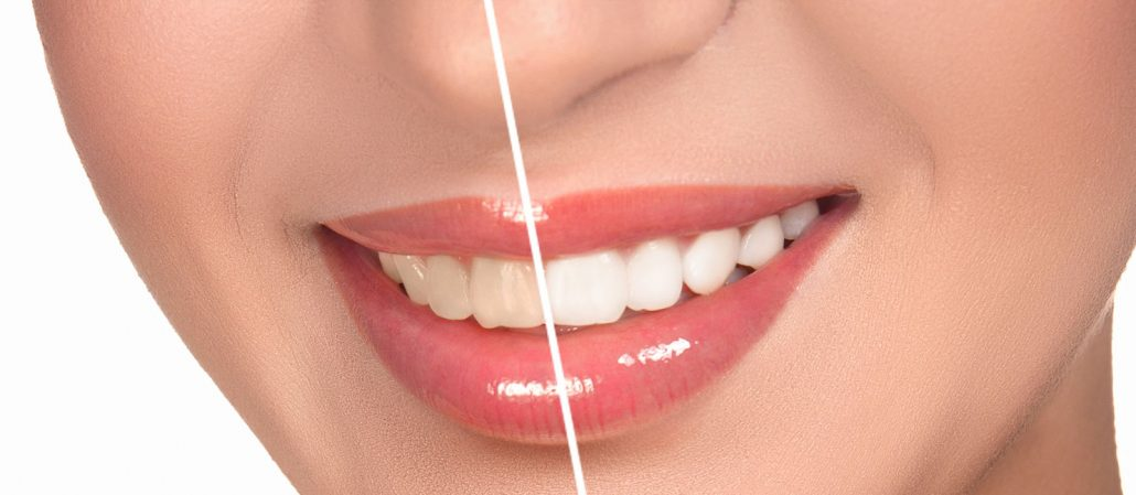 Food Items Useful to Retain Your Teeth Whiteness