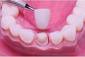 Getting a Dental Crown? Read this First!