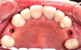 Who Can Benefit from Sedation Dentistry?